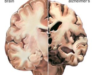 Dimentia, Alzheimers and Mad Cow Disease